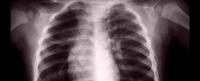 Lung Health during Fire Season
